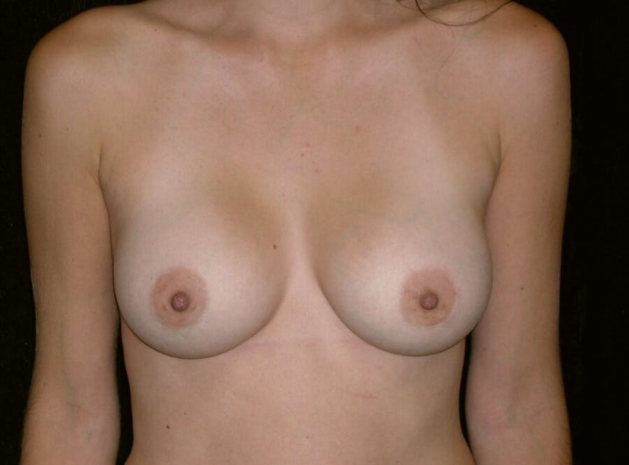 Breast Augmentation Gallery - Patient 39245647 - Image 2