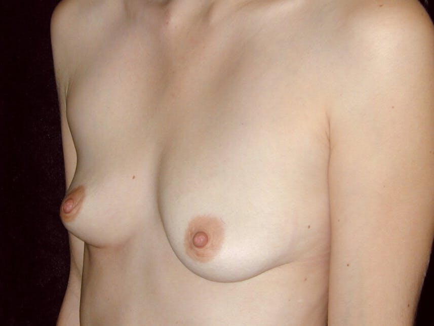 Breast Augmentation Gallery - Patient 39245647 - Image 3