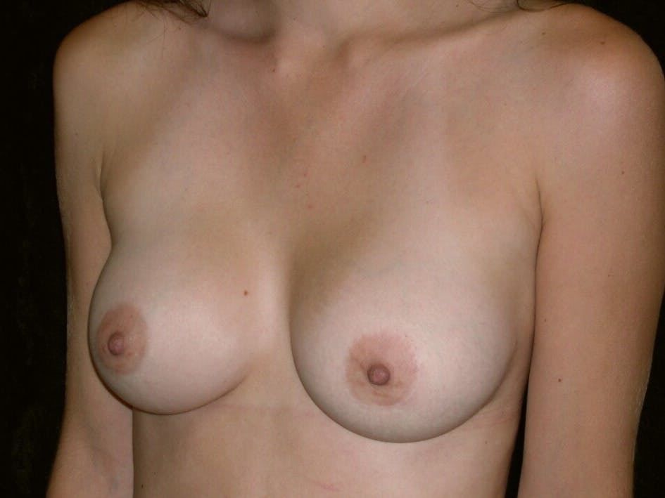 Breast Augmentation Gallery - Patient 39245647 - Image 4