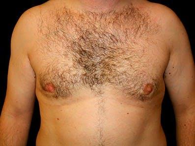 Gynecomastia Gallery - Patient 39245646 - Image 2
