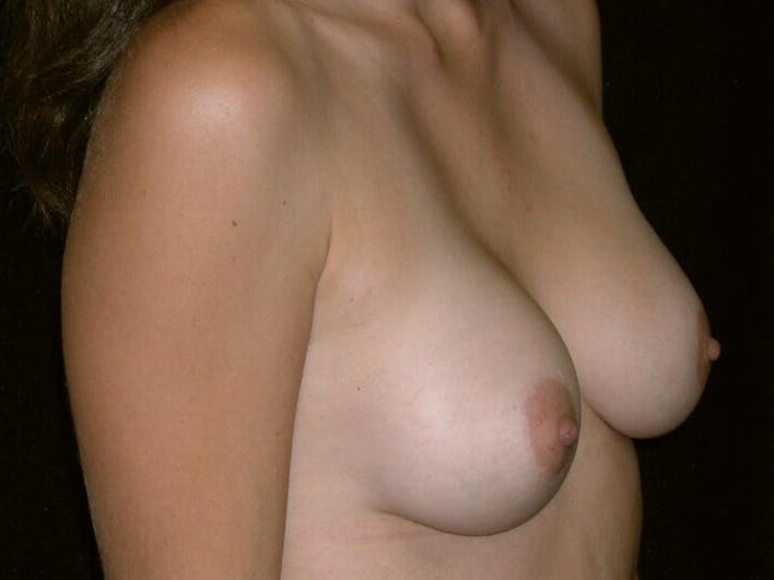 Breast Augmentation Gallery - Patient 39245647 - Image 6
