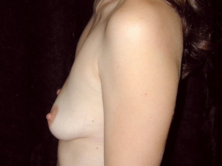 Breast Augmentation Gallery - Patient 39245647 - Image 7