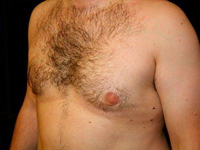 Gynecomastia Gallery - Patient 39245646 - Image 6