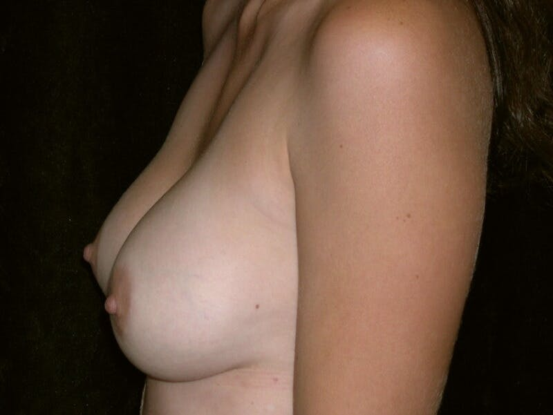 Breast Augmentation Gallery - Patient 39245647 - Image 8