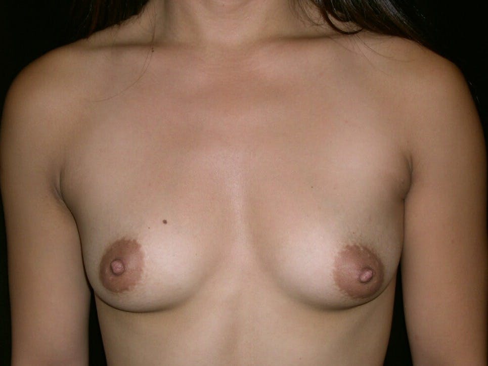 Breast Augmentation Gallery - Patient 39245656 - Image 1