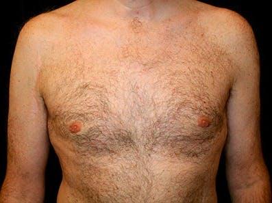 Gynecomastia Gallery - Patient 39245653 - Image 2