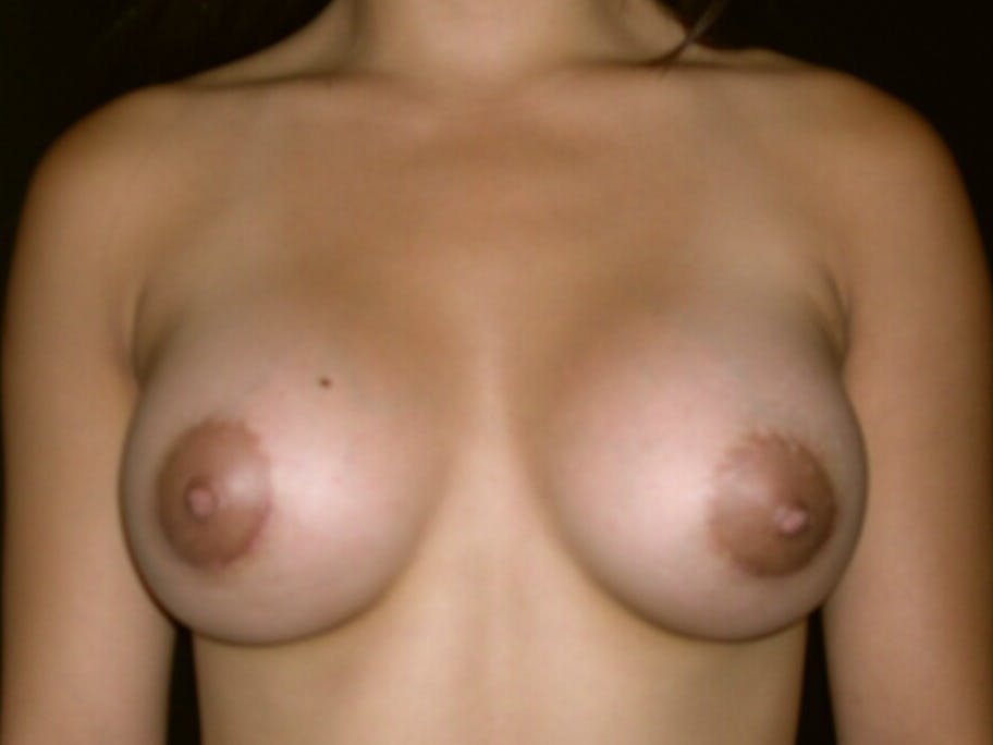 Breast Augmentation Gallery - Patient 39245656 - Image 2