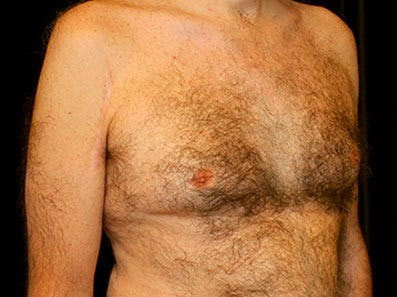 Gynecomastia Gallery - Patient 39245653 - Image 3