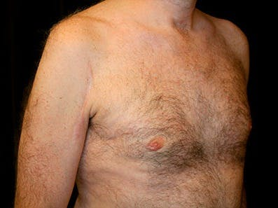 Gynecomastia Gallery - Patient 39245653 - Image 4