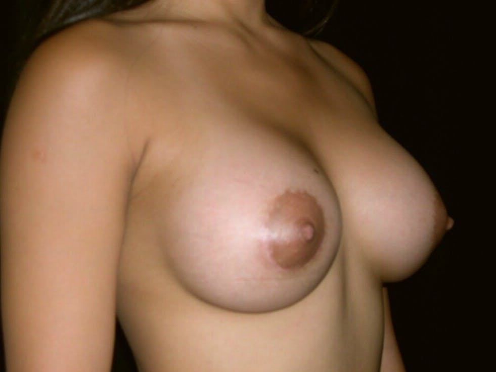 Breast Augmentation Gallery - Patient 39245656 - Image 4
