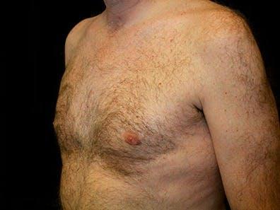 Gynecomastia Gallery - Patient 39245653 - Image 6