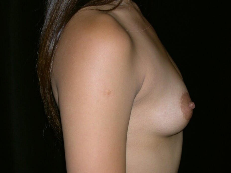 Breast Augmentation Gallery - Patient 39245656 - Image 5