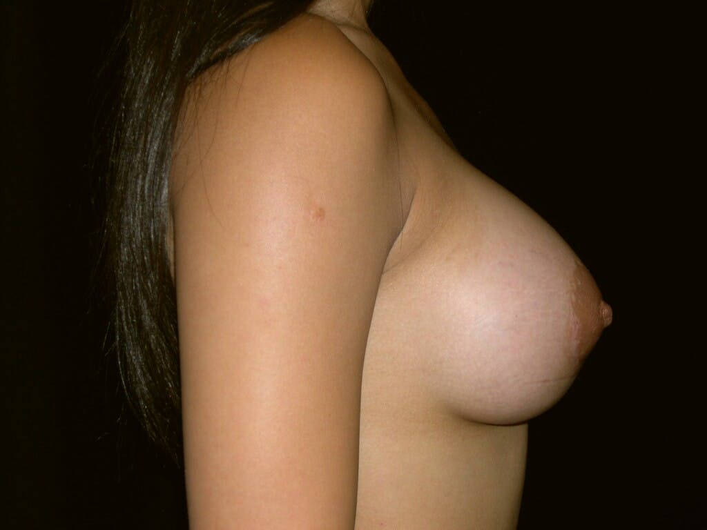 Breast Augmentation Gallery - Patient 39245656 - Image 6