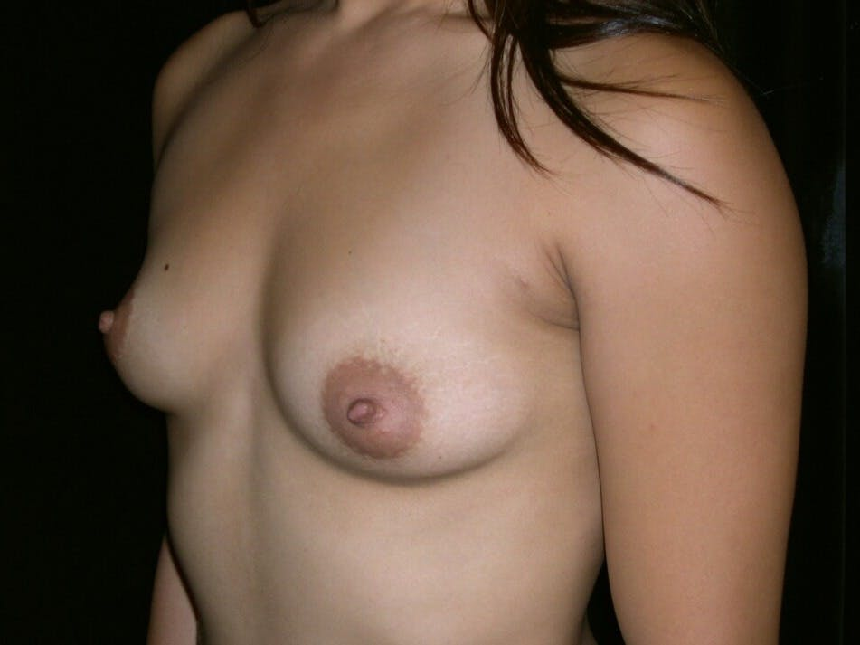 Breast Augmentation Gallery - Patient 39245656 - Image 7