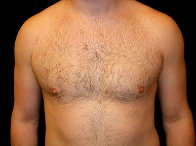 Gynecomastia Gallery - Patient 39245660 - Image 2