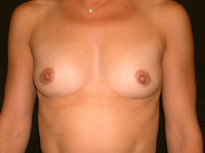Breast Augmentation Gallery - Patient 39245691 - Image 1