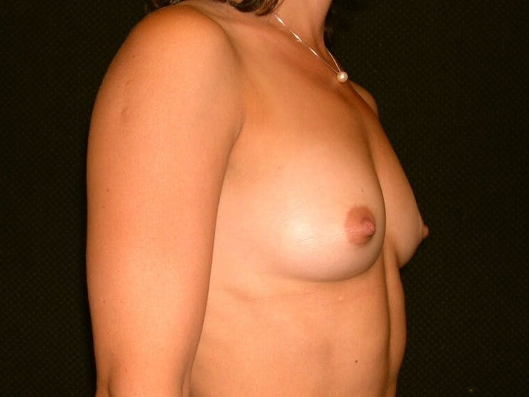 Breast Augmentation Gallery - Patient 39245691 - Image 3