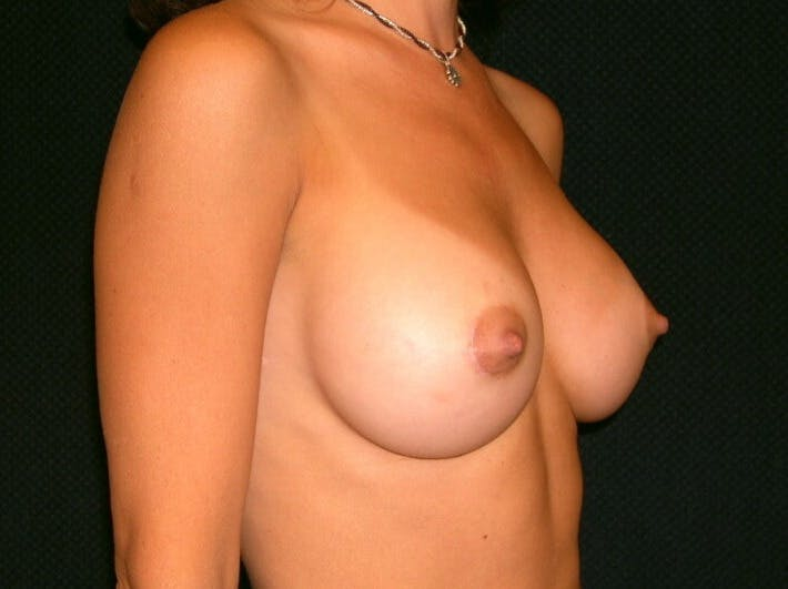 Breast Augmentation Gallery - Patient 39245691 - Image 4