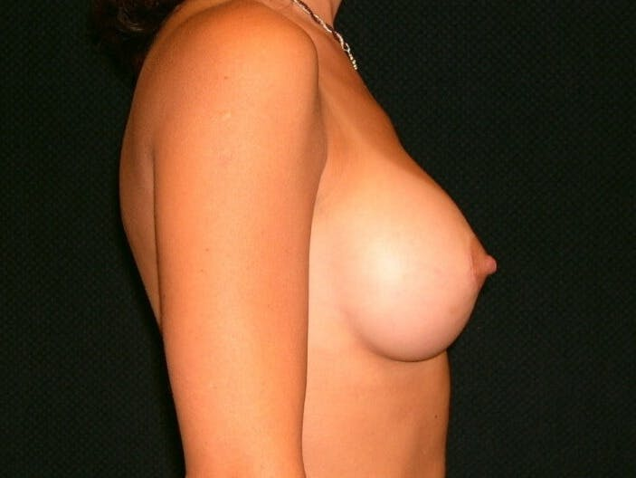 Breast Augmentation Gallery - Patient 39245691 - Image 6