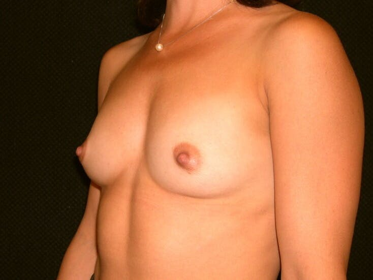 Breast Augmentation Gallery - Patient 39245691 - Image 7