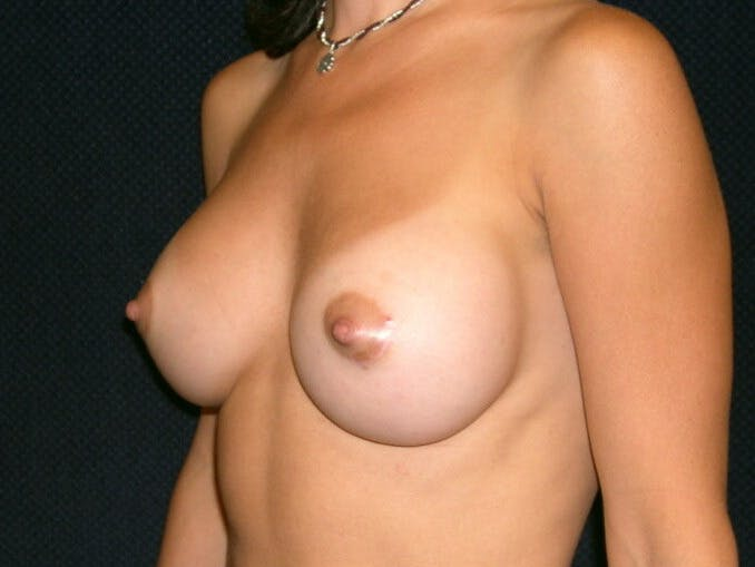 Breast Augmentation Gallery - Patient 39245691 - Image 8