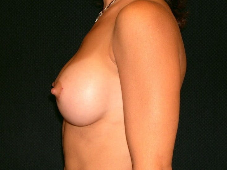 Breast Augmentation Gallery - Patient 39245691 - Image 10