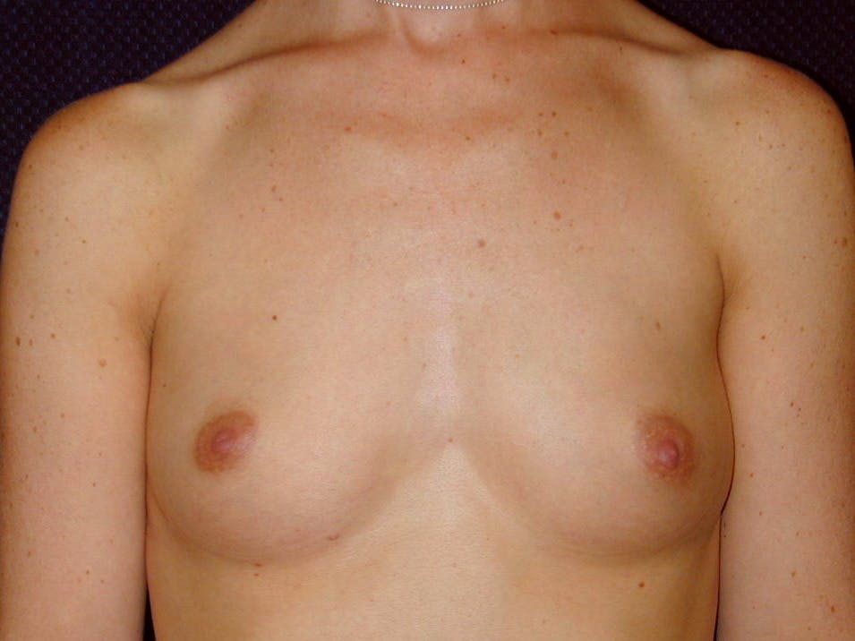 Breast Augmentation Gallery - Patient 39245710 - Image 1