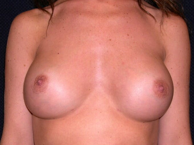 Breast Augmentation Gallery - Patient 39245710 - Image 2