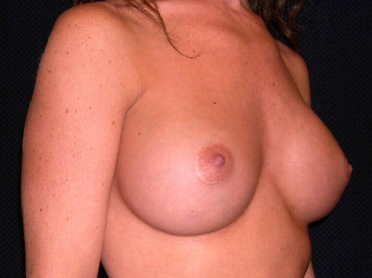 Breast Augmentation Gallery - Patient 39245710 - Image 4