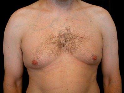 Gynecomastia Gallery - Patient 39245708 - Image 1
