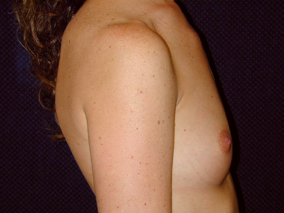Breast Augmentation Gallery - Patient 39245710 - Image 5