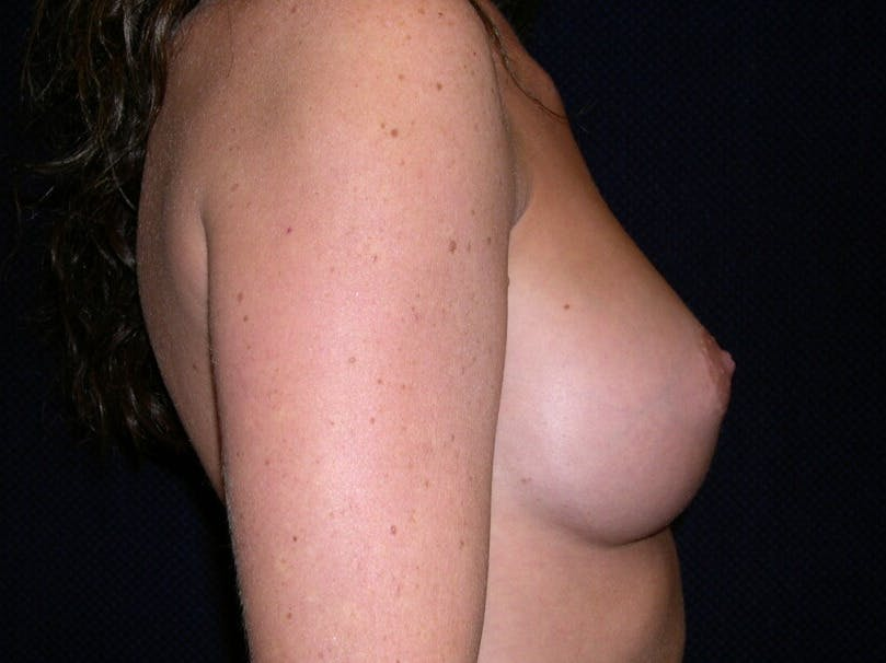 Breast Augmentation Gallery - Patient 39245710 - Image 6
