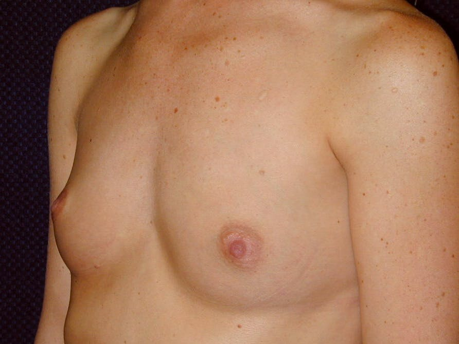 Breast Augmentation Gallery - Patient 39245710 - Image 7