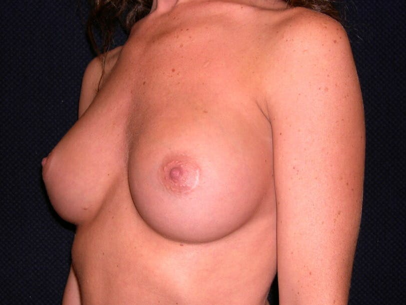Breast Augmentation Gallery - Patient 39245710 - Image 8