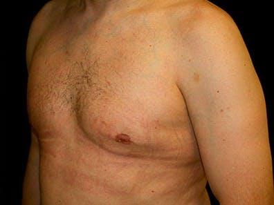 Gynecomastia Gallery - Patient 39245708 - Image 6