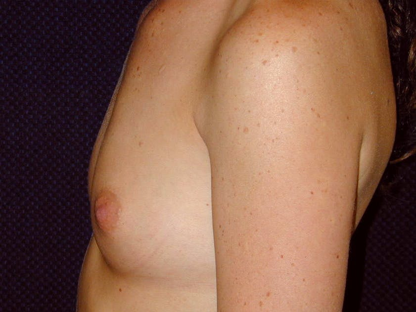 Breast Augmentation Gallery - Patient 39245710 - Image 9