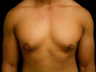 Gynecomastia Gallery - Patient 39245713 - Image 1