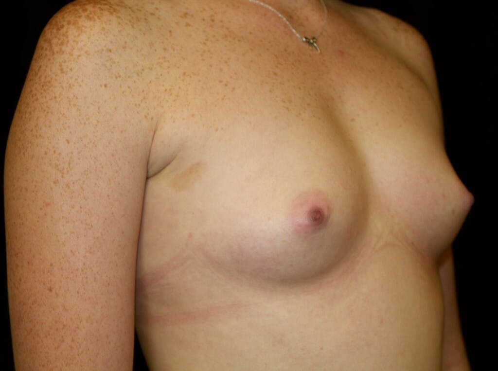 Breast Augmentation Gallery - Patient 39245717 - Image 1