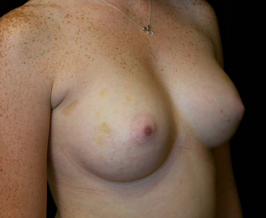 Breast Augmentation Gallery - Patient 39245717 - Image 2