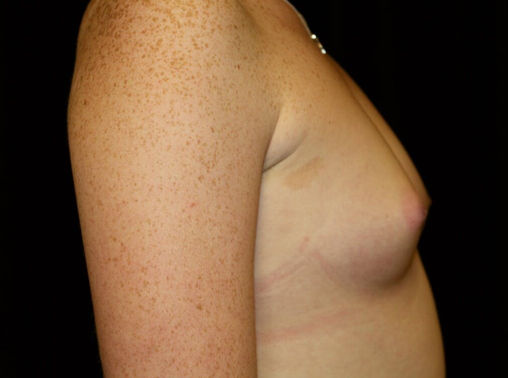 Breast Augmentation Gallery - Patient 39245717 - Image 3