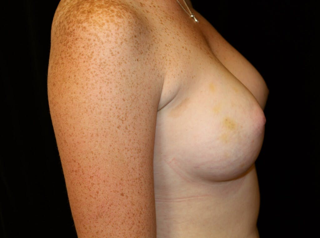 Breast Augmentation Gallery - Patient 39245717 - Image 4