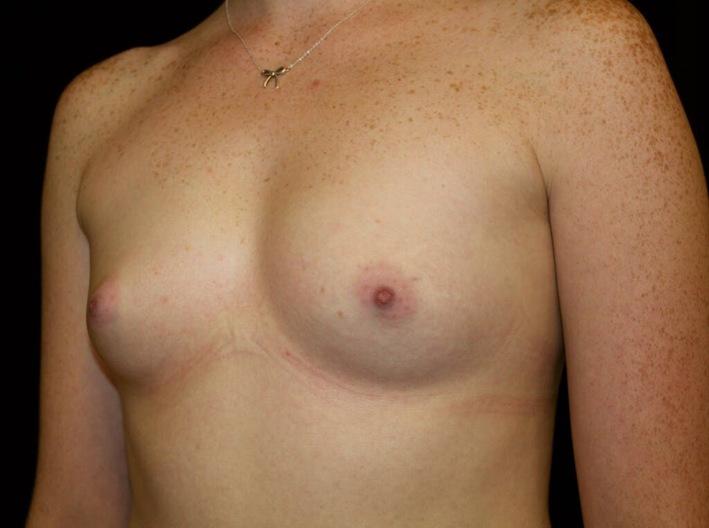 Breast Augmentation Gallery - Patient 39245717 - Image 5