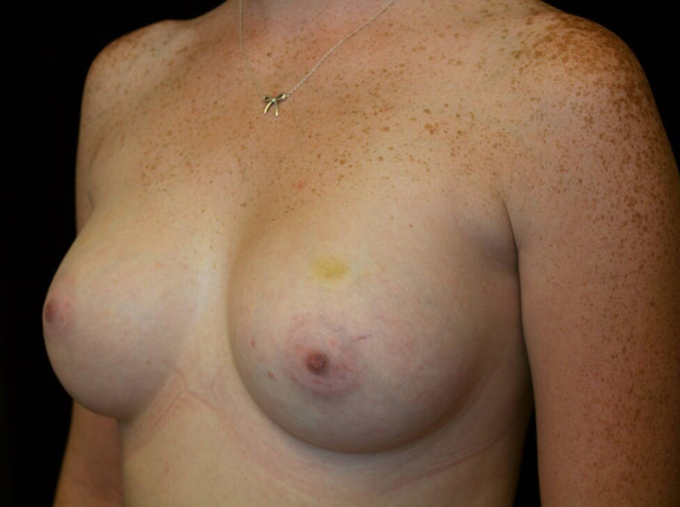 Breast Augmentation Gallery - Patient 39245717 - Image 6