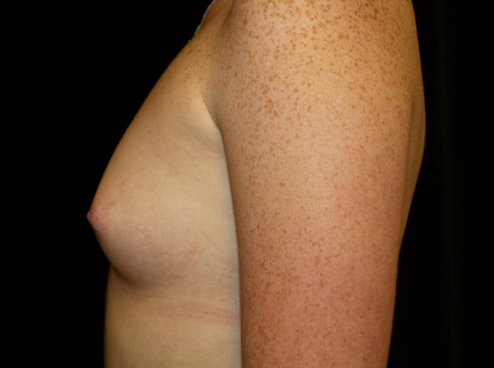 Breast Augmentation Gallery - Patient 39245717 - Image 7