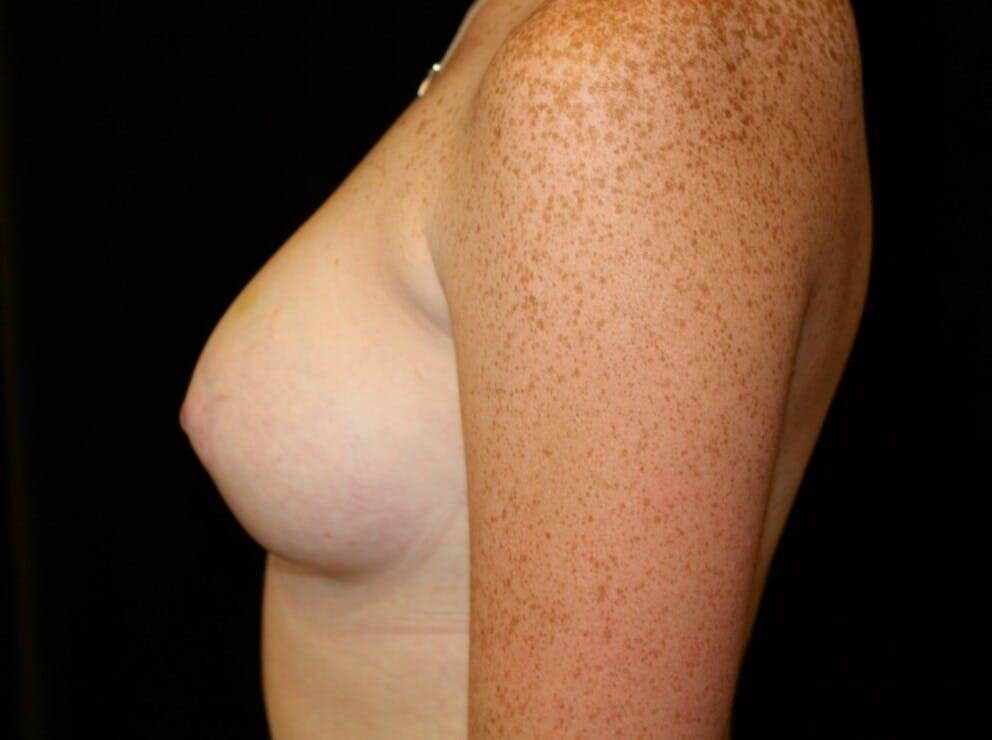 Breast Augmentation Gallery - Patient 39245717 - Image 8