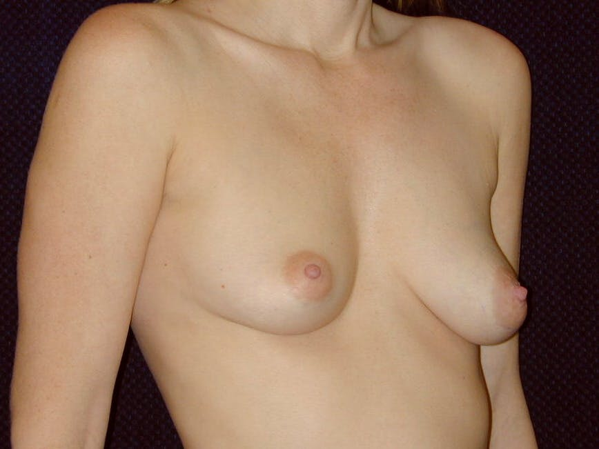 Breast Augmentation Gallery - Patient 39245720 - Image 1