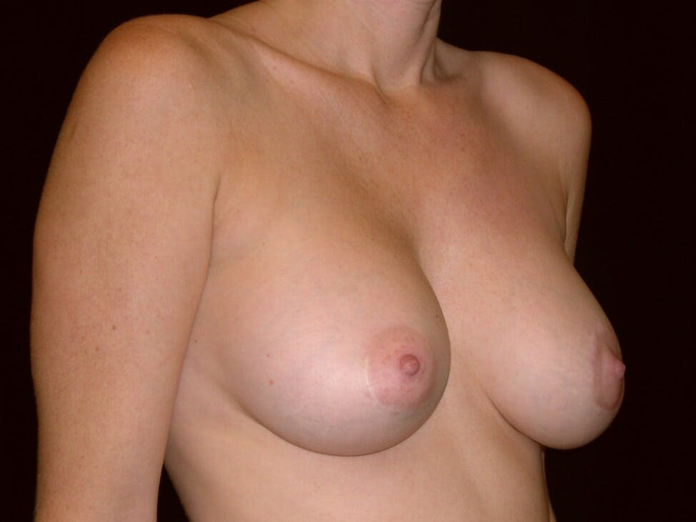 Breast Augmentation Gallery - Patient 39245720 - Image 2