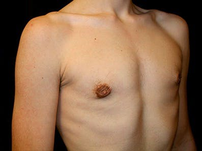 Gynecomastia Gallery - Patient 39245718 - Image 4