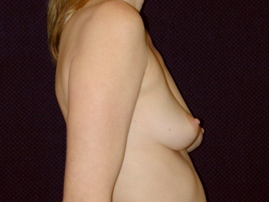 Breast Augmentation Gallery - Patient 39245720 - Image 3