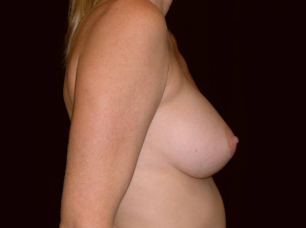 Breast Augmentation Gallery - Patient 39245720 - Image 4